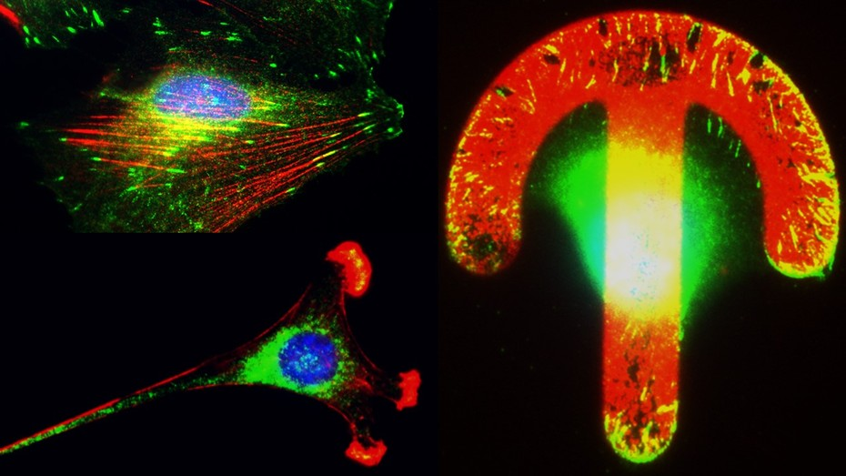 Left: Immunofluorescent labelling of the cytoskeleton in cells; Right: Immunofluorescent labelled cells adapting the shape and position of the cytoskeleton according to artificial patterns