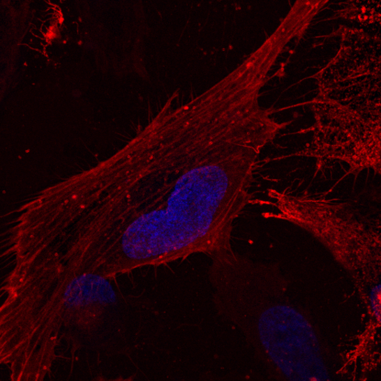 Immunostaining of the nuclei and Actin to visualise the cytoskeleton.